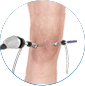 arthroscopic knee surgery by Dr. McCarthy