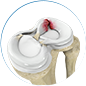 meniscus injuries by Dr. McCarthy
