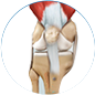 patella instability treatment by Dr. McCarthy